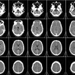 اسکن اِم آر آی (MRI) می تواند به پیش بینی پیشرفت ام اس کمک کند