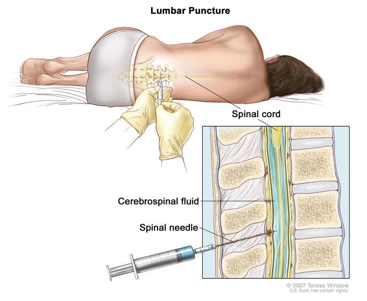 آزمایش ال پی (سوراخ کمری یا Lumbar Puncture) یا آزمایش مایع نخاعی