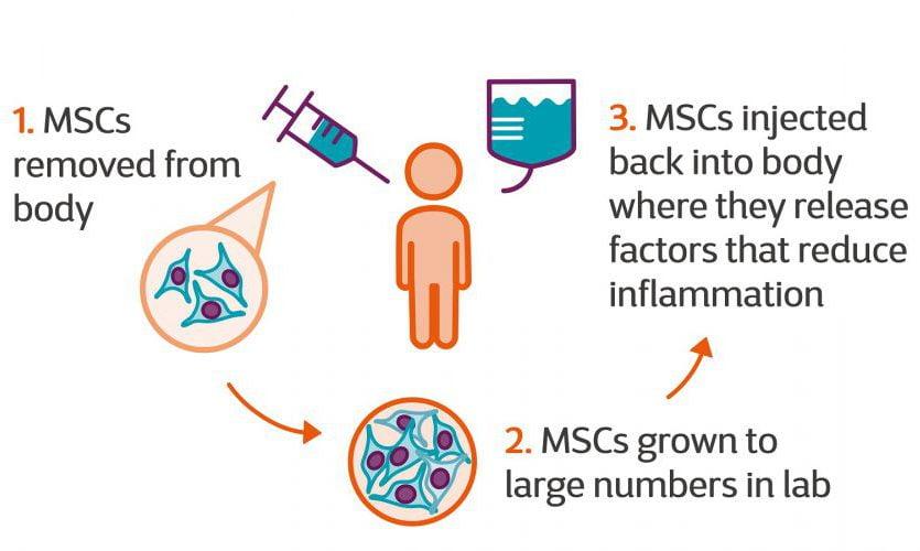 نتایج اولیه درمان ام اس با سلول های بنیادی MSCT