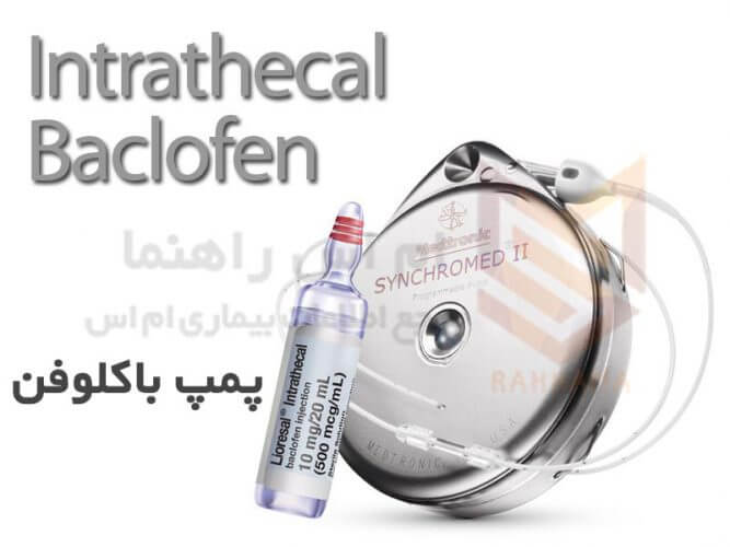 پمپ باکلوفن یا باکلوفن اینتراتکال Intrathecal baclofen