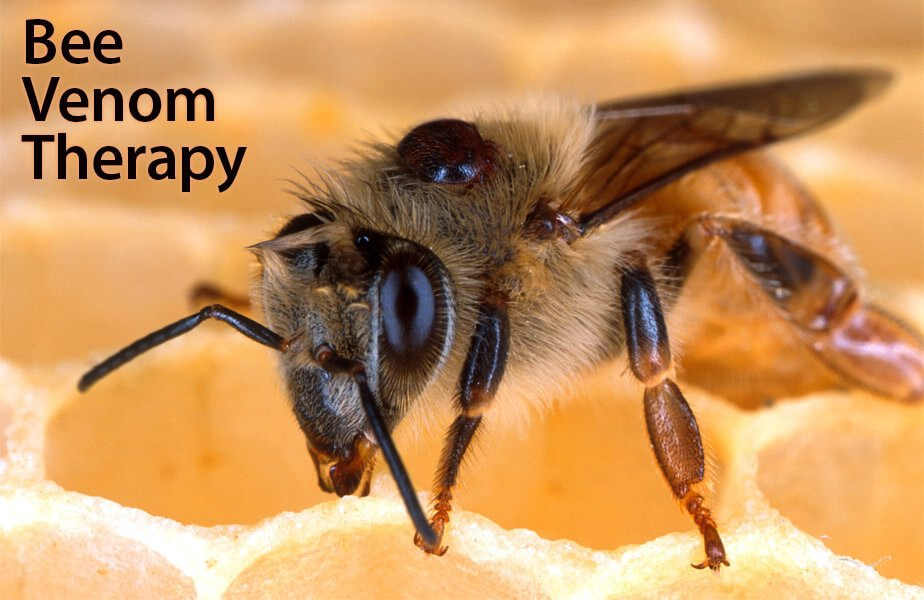 زنبور درمانی و ام اس