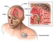 تحریک عمیق مغز برای درمان لرزش در ام اس