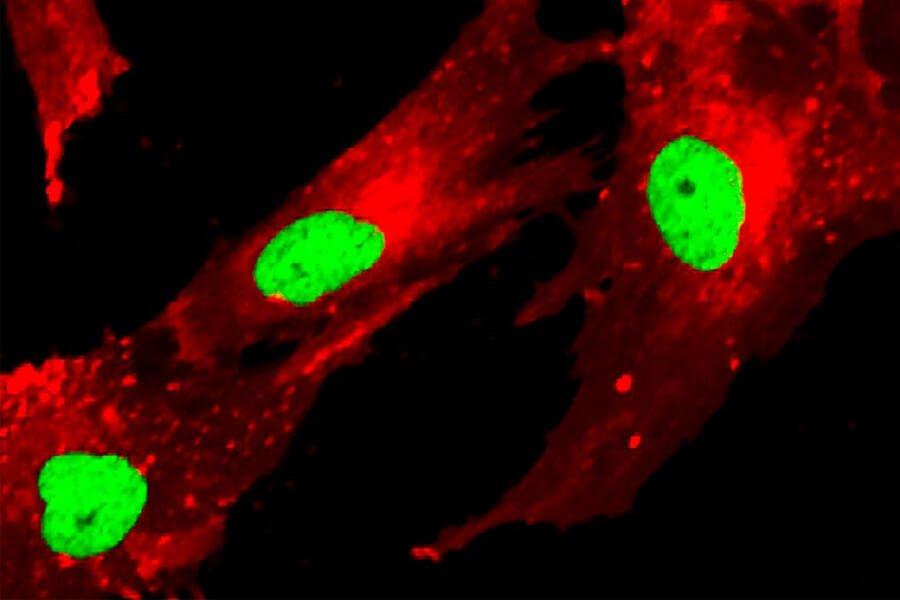 سلول های بنیادی مزانشیمی و iPSC ها